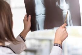 Güçlü kemiklerin sırrı! Bu vitamin ve minerallerle dost olun…