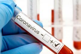 Coronavirüs İle İlgili Merak Edilenler